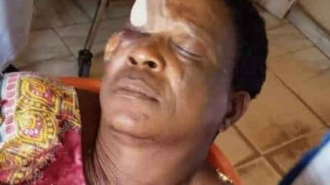 How Aggrieved Youth Beat Up Politician's Wife In Edo During Governorship Election